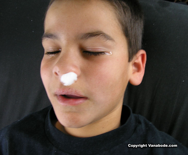 picture of ben with cotton in his nose